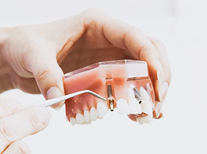 Maple Ridge Dentist Maple Ridge Dental Implant Tooth Ache Mapleridge emergency dentist
